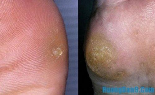 Hướng dẫn cách trị vết chai ở chân và tay hiệu quả