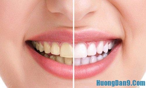 Hướng dẫn cách làm sạch cao răng hiệu quả tại nhà