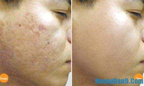 Hướng dẫn cách trị sẹo rỗ trên mặt hiệu quả