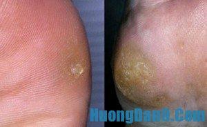 Hướng dẫn cách trị vết chai ở bàn chân, tay hiệu quả