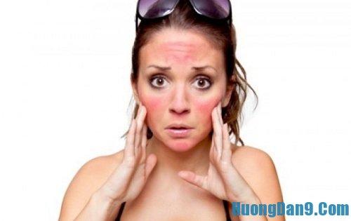Hướng dẫn cách phục hồi làn da bị cháy cháy nắng hiệu quả