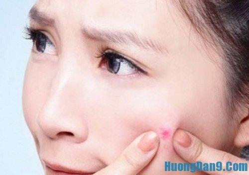 Hướng dẫn cách trị sẹo thâm do mụn để lại hiệu quả