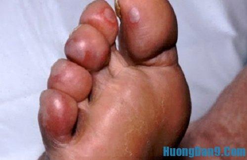 Hướng dẫn cách trị bệnh cước tay chân đơn giản mà hiệu quả